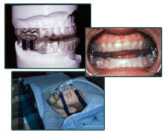 Sleep Apnea Treatment Cpap Vs Oral Devices